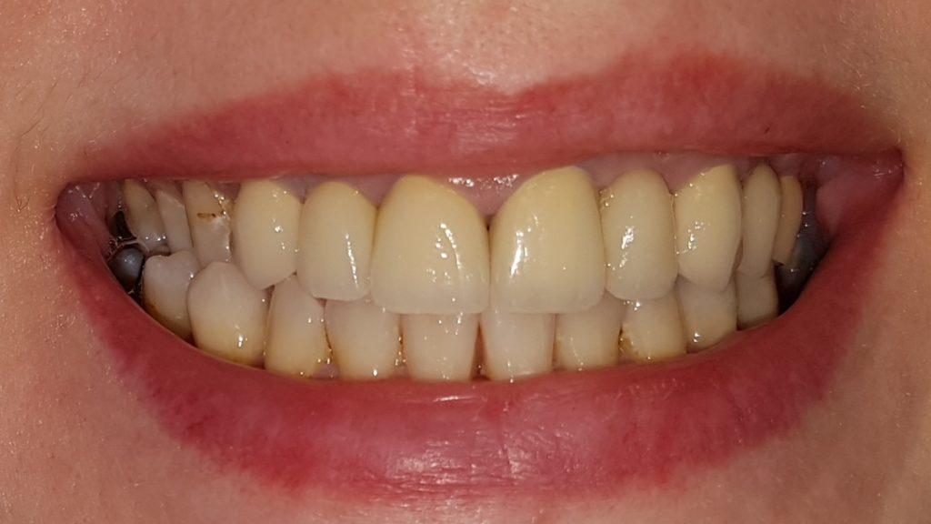 produkty niszczące zęby