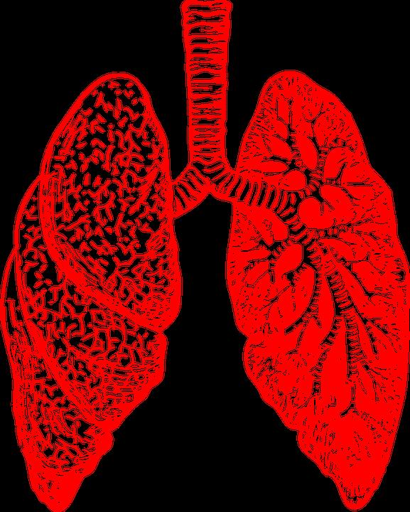 zapalenie pluc