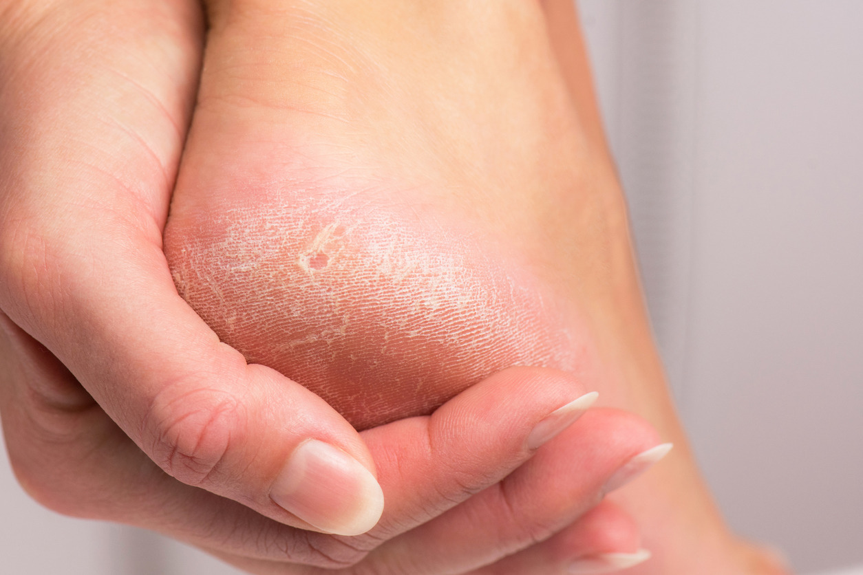 popekane stopy