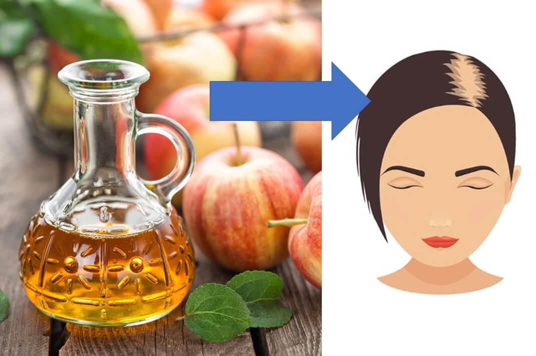 ocet jabłkowy sposób na przetłuszczające się włosy